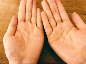 マリスビオの中身を手の平で温めて伸ばした写真