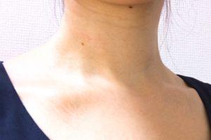 マリスビオを首に塗った後の写真